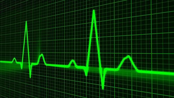 pulse-monitoring